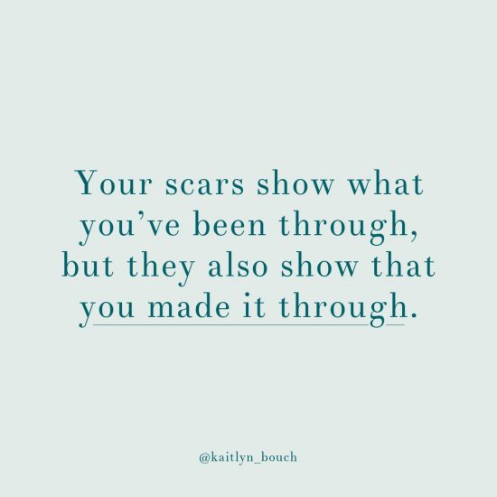 Your scars show what you've been through, but they also show that you made it through. You're still here.